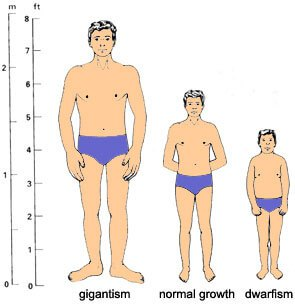 Growth Hormone deficiency